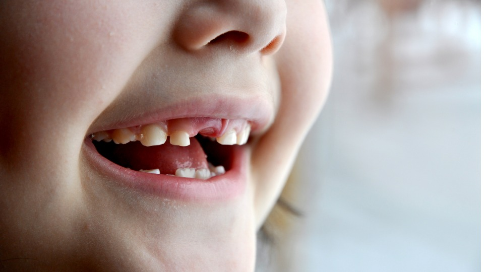 Is bubba at risk of getting baby bottle tooth decay?