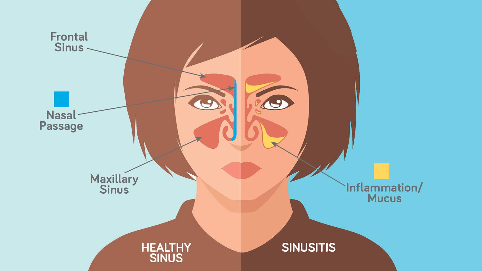 Kids-3-common-sinus-conditions-to-know-2