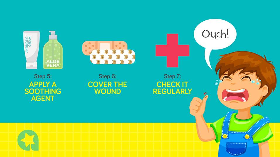 How to treat your child's wounds at home