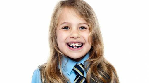 Braces for kids — yes or no?